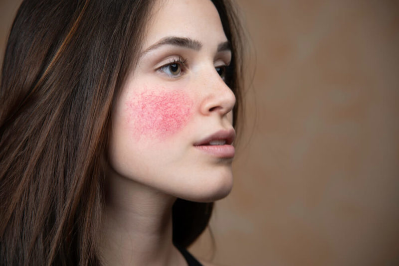 Rosacea ft img showing the concept of Medical & Surgical Dermatology