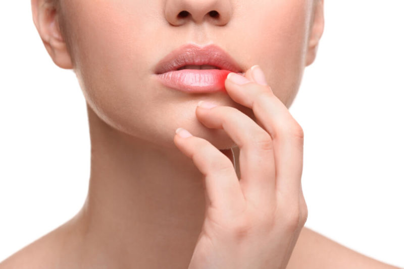 Skin Infections showing the concept of Medical & Surgical Dermatology